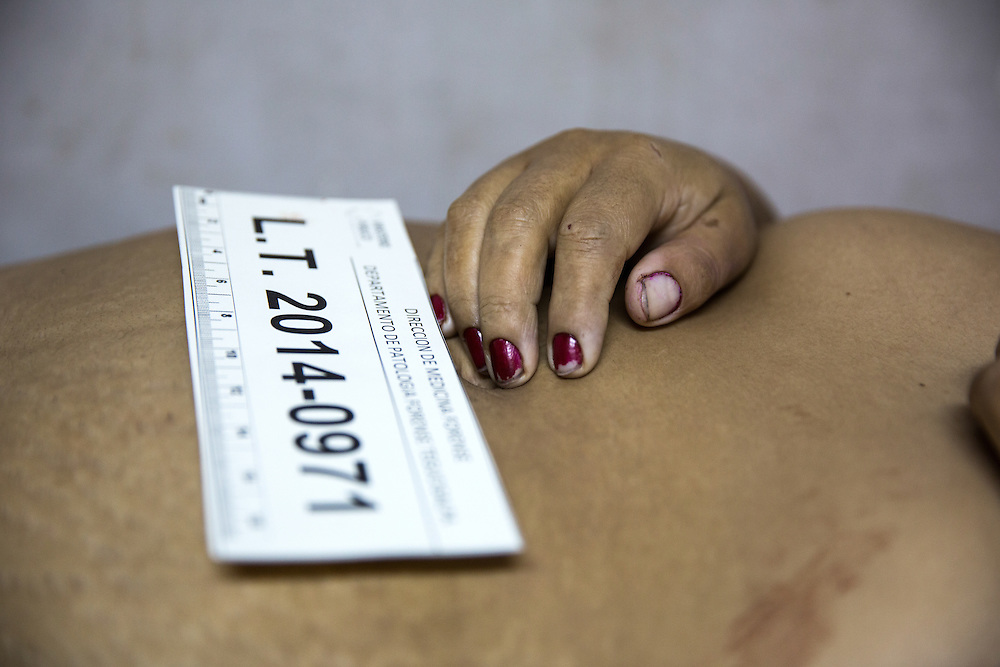 Tegucigalpa, Honduras<br /> A 42 year old women killed by her husband lays in the hospital morgue. Her husband cut her throat out on the street. Her son is in the waiting room crying.&nbsp;?<br /> <br /> Photo: Niclas Hammarstr&ouml;m