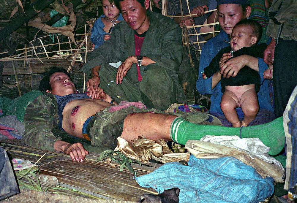 Mr. Kong Meng Fa or Tong Fang, injured April 6, 2006.  His wife was killed.....Pictured are a group of Hmong people who report an attack against them April 6, 2006 by Lao and Vietnamese military forces.  26 people perished, 5 were injured, and 5 babies died shortly after because their dead mothers could not breast-feed them.  Only one adult male was killed, the other 25 victims were women and children (17 children).