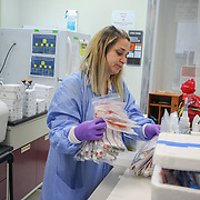 Specimens arrive at the Centers for Disease Control laboratory in San Juan, Puerto Rico, where they will be tested for the Zika virus. Right now, Zika is spreading rapidly in Puerto Rico and pregnant women are at risk for becoming infected with Zika which can cause microcephaly and other birth defects. If the current trends continue, at least 1 in 4 people, including women who become pregnant, may become infected with Zika.
