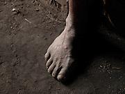 Cayievi's foot