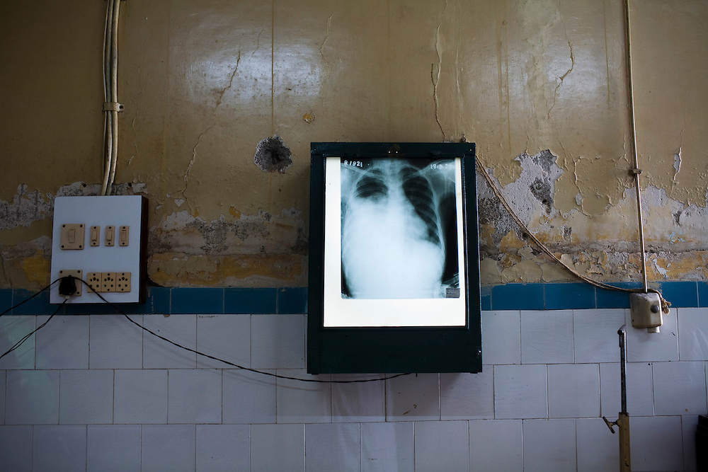 The chest X-Ray of a patient at the Group of TB Hospitals hangs in the surgical ward.