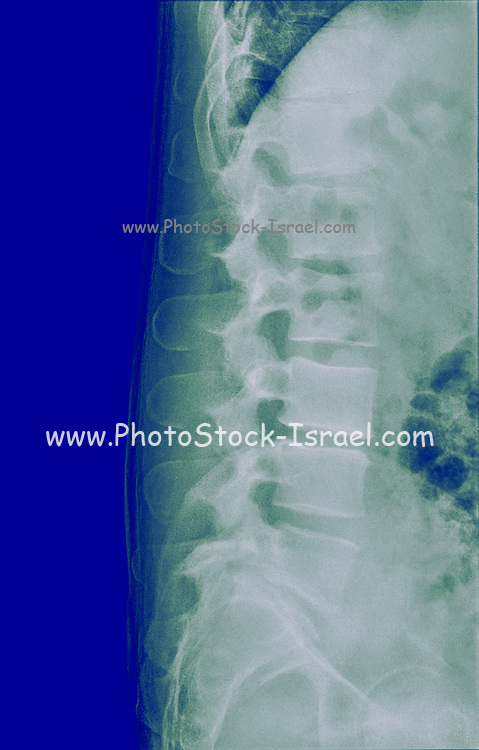 Human Lumbar Spine x-Ray Side View (male 37 years)