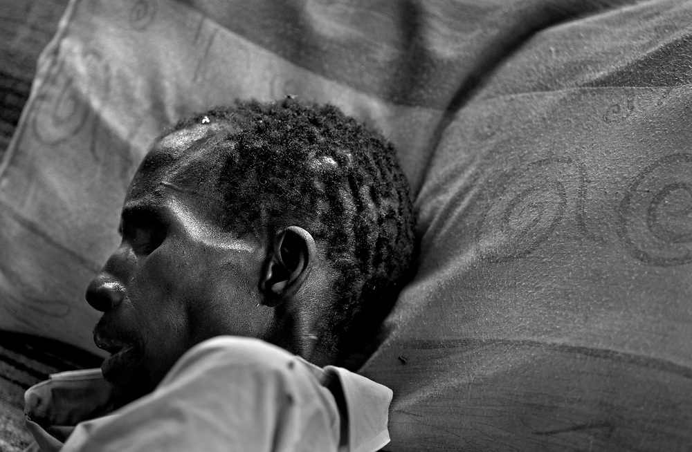 Living positively, HIV/AIDS in Zambia. .Peter Kumwenda, 37 years old, has developed full blown AIDS. Peter suffered from meningitis due to AIDS. He was poorly treated at the central hospital, markings on his wrists shows that he was tied to his bed. Now he's being treated at Jons hospice for terminally ill in capital Lusaka. .The life expentency rate in Zambia has dramatically gone down since the AIDS disaster struck the country. Today the life expentancy rate is 37 years..Photo: Markus Marcetic/MOMENT