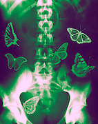 Concept - Butterflies in the stomach - x-ray of a human Abdomen with butterflies