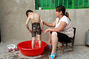 FENGQIU COUNTY, CHINA - (CHINA OUT) <br /> <br /> 5-Year-Old Girl Has Never Worn Dress Due To Her Black Patch<br /> <br /> Wang Yanna bathes her 5-year-old daughter Mengmeng, who has a giant black patch of melanocytic nevi on her midsection on May 24, 2014 in Fengqiu County, Henan Province of China. After three years of infertility, Wang Yanna finally gave birth to her first child, Mengmeng, only to find a giant black patch of melanocytic nevi on her midsection. Mengmeng, 5-year-old daughter of Liu Weikai and Wang Yanna from Fengqiu County, is willing to go through pain to get rid of the patch. During a laser operation, Mengmeng cried in pain yet still would not let them stop. Although doctors were able to get rid of the lumps that formed on Mengmeng\'s black patch, none of them knew what to do with the patch itself. Since the patch may become cancerous, Mengmeng\'s parents are worried it will be a threat to their daughter\'s life. Several experts have suggested to graft off the skin but the operation would require hundreds of thousands of dollars, which is unrealistic for Mengmeng\'s family. Mengmeng currently does not go to school, only plays at her front door, and has never worn a dress.<br />  ©Exclusivepix