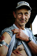 Douglas Blackford, 60, shows off his trail wounds after completing the  Massanutten Mountain Trails 100 Mile run (MMT 100) May 17, 2008..Blackford completed the run with a time of 32:26:21 and was first place in the age group 60 or older. .The  MMT 100 is considered one of the toughest Ultra Marathons on the east coast. The  Massanutten Mountain Trails 100 Mile run (MMT 100) May 17, 2008.<br /> The  race is considered one of the toughest Ultra Marathons on the east coast.