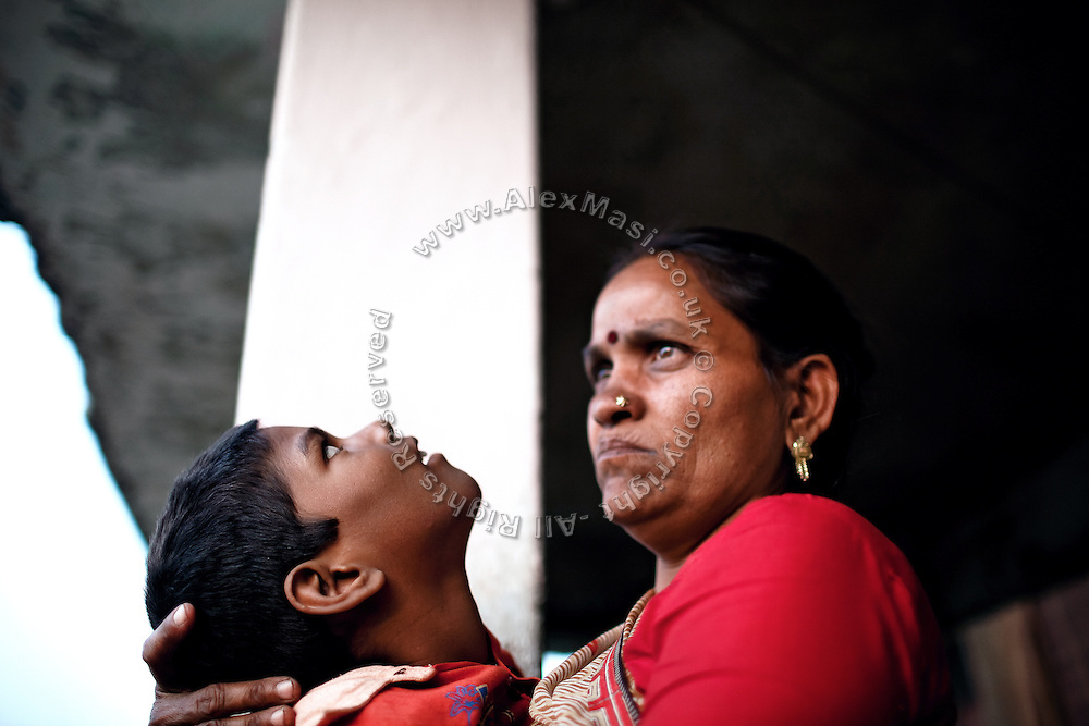 Raj, 7, a child suffering from a severe neurological disorder is being held by his mother, Poona Bai, 40, in front of their home in the impoverished Oriya Basti colony, Bhopal, Madhya Pradesh, India, near the abandoned Union Carbide (now DOW Chemical) industrial complex.