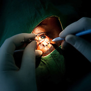 A cataract operation underway. A cataract can be replaced in under ten minutes and can give the patient full recovery of their vision. The Kenya Society for the Blind is a long standing charity which works to make blind people able to function in the community as a whole. They support children in schools and supply them with Braille writers, specialist teachers,glasses for visually impaired,counseling and other much needed tools. .KSB fund the running costs of a specialist unit at Mbagathi Hospital, a state run hospital in Nairobi. The unit perform cataract operations on a regular basis, here a woman partially blind on both eyes is having the first of two new lenses put in instead of her own lenses, an operation performed by Dr Kipet. The operation takes 10-15 minutes and the patients are usually send home again after one night and will be able to see again almost immediately.
