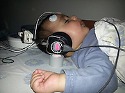Brainstem evoked response audiometry - BERA (also auditory brainstem response or ABR) a screening test to monitor for hearing loss or deafness. a baby girl is being tested