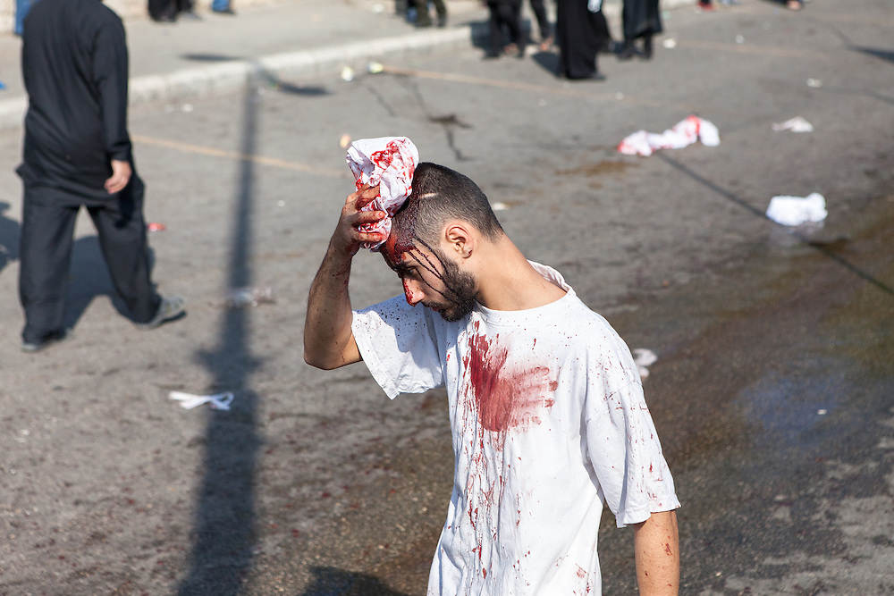Mourning shiite muslim man, with a self-inflicted head wound, walking on the streets of Nabatieh, Lebanon, during the Day of Ashura (November 14, 2013).