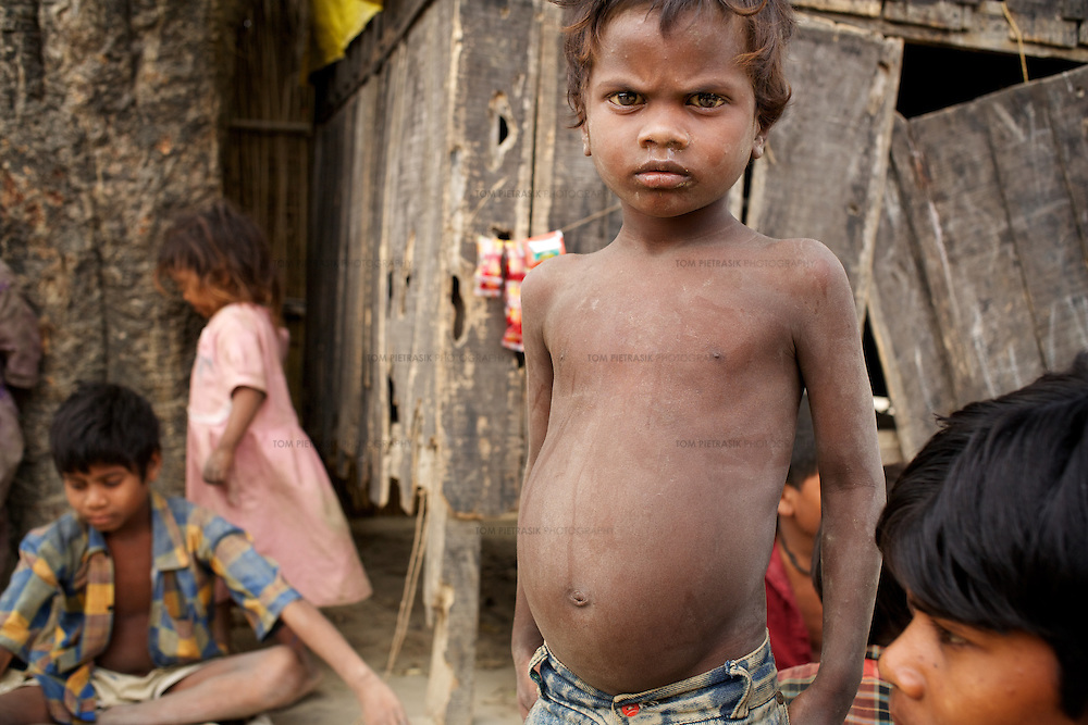 Jogindar, a Musahar boy from Puraina village has a distended stomach which is a sign of malnutrition. Most of Puraina's children are malnourished and regularly suffer ailments that go undiagnosed because the local government funded ICDS (Integrated Child Development Service) is administered by higher caste women who resist any involvement with the Musahar whom they are supposed to serve. ..The Musahar population of Puraina village continue to live in absolute poverty. They have won some concessions from the government including the granting of limited land rights which has provided an independent source of income for a few. However, most in the community continue to work as day-wage labourers for dominant caste land owners. Other gains for Puraina include the the building of a village community centre under the National Rural Employment Guarantee Programme, a Government of India scheme designed to use the rural unemployed to generate productive assets and infrastructure. But caste oppression and economic hardship continue to marginalise Puraina's Musahars and prevent them from having any significant influence over their own lives. The village representative at the panchayat (or village council) level of government is from a higher caste and lives separately from the Musahars. His political influence allows him to repress Musahars and restrict their access to rights and services. Nursing mothers and young children have no access to the government funded ICDS (Integrated Child Development Service) because the local Anganwadi workers who run the scheme are from a higher caste and resist any involvement with the Musahar. The Anganwadi centre building is not properly maintained and free government supplies of panjiri, a nutritious mix for young children and nursing mothers, have been syphoned off for sale as cattle-feed on the local market. ..The Musahar community are one of India's most impoverished and marginalised groups. They are considered untouchable within the hea