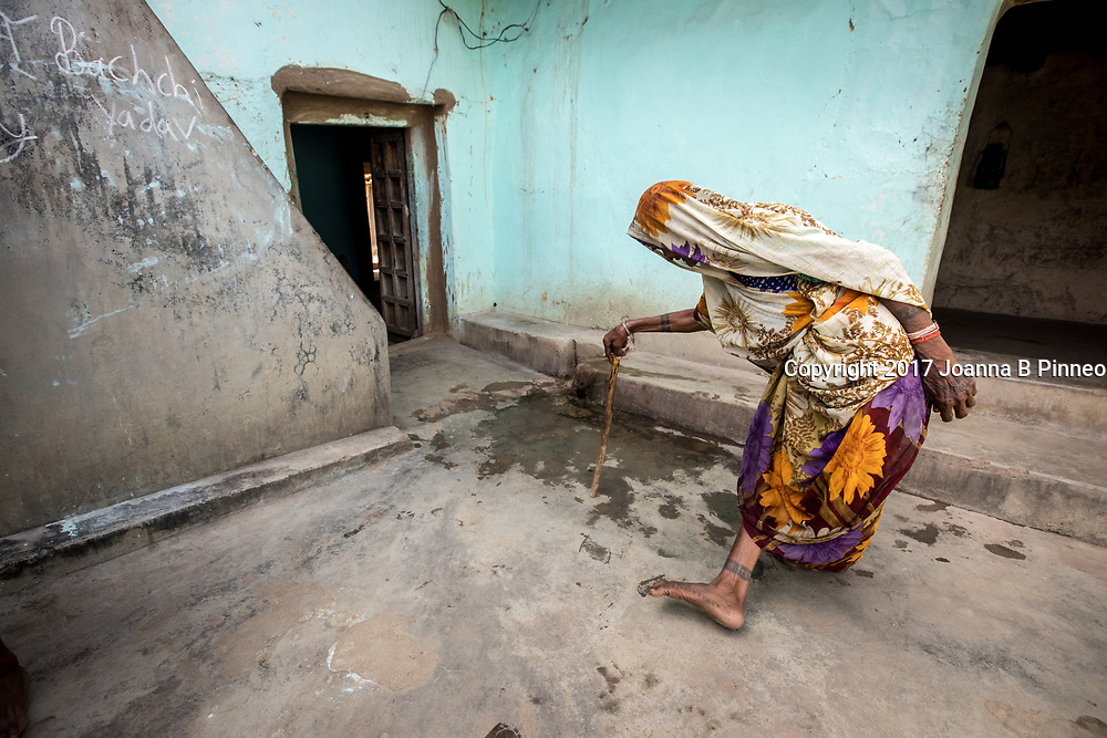 Harhori village, near Gariya village, Uttar Pradesh<br /> Basapat, age 65 noticed that her feet were turning in about 8 years ago and it has continued. Her knees hurt a lot and it is very difficult for her to walk. First, she started bending over and she had pain in her feet. Then gradually she was not able to straighten up and then her feet started to turn in.  She just kept getting worse and did not know why.  She went to the local doctors and they told her it was just normal body pain.  They have the same source of water from the big damn. The water in this village is banned. Basapat has no money to seek other solutions. This area is now known as the &ldquo;Energy Capital of India&rdquo; because after large the coal deposits were found many thermal power stations opened. Chemical plants and other industrial operations also came to the area.