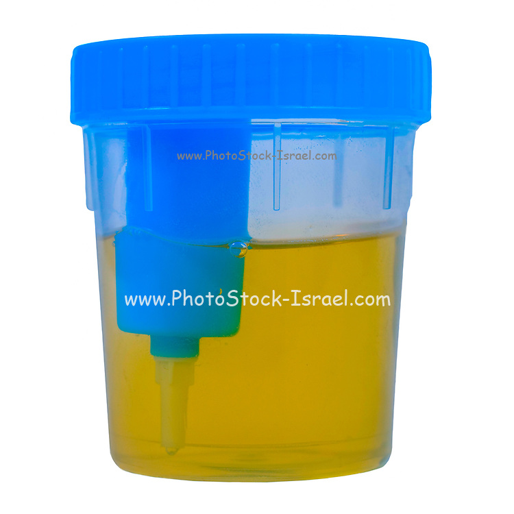 Cutout of an sterile Urine sample cup, containing a urine sample close-up on white background