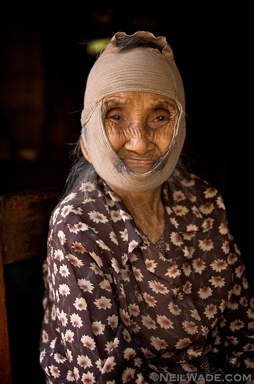 An elderly woman with a bandage on her head as a cure for a toothache (headache?) in Muang Ngoi Neu, Laos PDR.