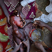 Benin, Djougou November 28, 2006 - The scarification ceremony is of great social importance and the rites of the ritual have special symbolic meanings. Scarification is used as a form of initiation into adulthood, beauty and a sign of a village, tribe, and clan.