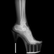 X-ray of a woman leg wearing Stiletto High-Heeled Shoe