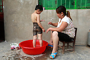 FENGQIU COUNTY, CHINA - (CHINA OUT) <br /> <br /> 5-Year-Old Girl Has Never Worn Dress Due To Her Black Patch<br /> <br /> Wang Yanna bathes her 5-year-old daughter Mengmeng, who has a giant black patch of melanocytic nevi on her midsection on May 24, 2014 in Fengqiu County, Henan Province of China. After three years of infertility, Wang Yanna finally gave birth to her first child, Mengmeng, only to find a giant black patch of melanocytic nevi on her midsection. Mengmeng, 5-year-old daughter of Liu Weikai and Wang Yanna from Fengqiu County, is willing to go through pain to get rid of the patch. During a laser operation, Mengmeng cried in pain yet still would not let them stop. Although doctors were able to get rid of the lumps that formed on Mengmeng's black patch, none of them knew what to do with the patch itself. Since the patch may become cancerous, Mengmeng's parents are worried it will be a threat to their daughter\'s life. Several experts have suggested to graft off the skin but the operation would require hundreds of thousands of dollars, which is unrealistic for Mengmeng\'s family. Mengmeng currently does not go to school, only plays at her front door, and has never worn a dress. ©Exclusivepix