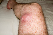 A malignant tumour (Sarcoma) on the right thigh of a male patient