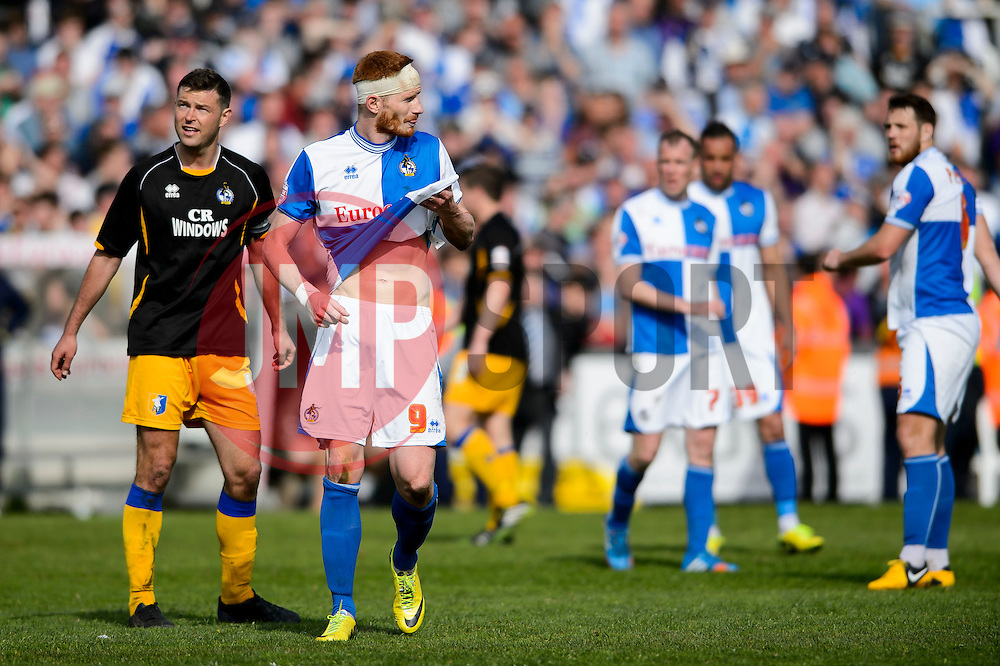 Matt Harrold (ENG) of Bristol Rovers looks dejected after a 0-1 loss in the match to confirm their sides relegation from League 2 into the Conference division - Photo mandatory by-line: Rogan Thomson/JMP - 07966 386802 - 03/05/2014 - SPORT - FOOTBALL - Memorial Stadium, Bristol - Bristol Rovers v Mansfield Town - Sky Bet League Two. (Note: Mansfield are wearing a Rovers spare kit having forgotten their own).