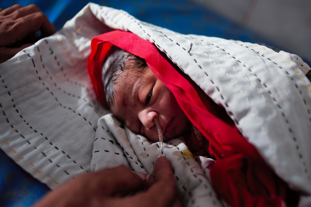 A one hour old baby with birth complications including mucus in the lungs is treated with oxygen in the Bautoro District Hospital, Thatta, Sindh, Pakistan on July 1, 2011.
