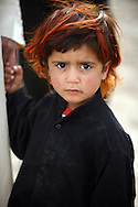 Marshland Arab Girl in Maysan Province, Iraq with hair turned red from lice killing medicine
