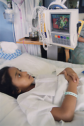 Young girl with spinal disease lying on hospital bed on Spinal ward watching cartoon on television,