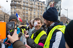 Franck (20) victim of a LBD 40 shot, he lost his eye on 1 December 2018, during the act 12 of yellow vests protest at the place Feix Eboue in Paris, France, on February 02, 2019. Photo by Serge Tenani/Avenir Pictures/ABACAPRESS.COM