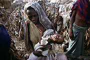 A woman carrying her listless child in a refugee camp near Merca, 100 km. south of Mogadishu, Somalia, the war-torn capital of Somalia. March 1992.