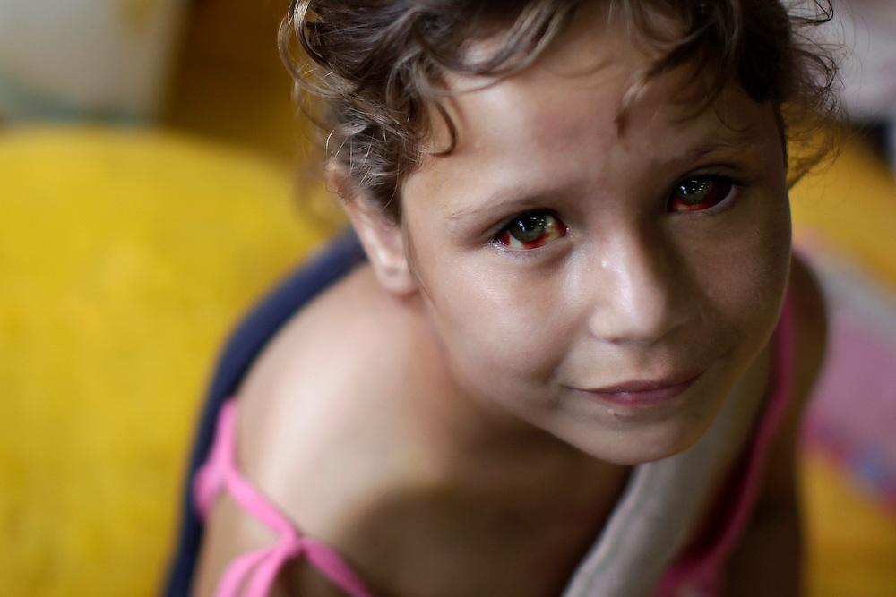 Ludmila Moura, 5, who was pulled out of her destroyed house by her father Marcelo, sits on a mattress at a shelter for people displaced by landslides in Nova Friburgo, Brazil, Sunday, Jan. 16, 2011. <br /> <br /> A series of flash floods and mudslides struck several cities in Rio de Janeiro State, destroying houses, roads and more. More than 900 people are reported to have been killed and over 300 remain missing in this, Brazil&rsquo;s worst-ever natural disaster.