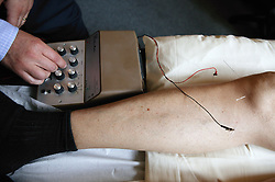 Electro acupuncture being applied with needles to patients leg,