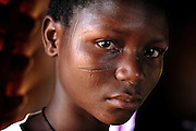 Benin, Natitingou April 20, 2005 - Young girl with facial scars . Scarification is used as a form of initiation into adulthood, beauty and a sign of a village, tribe, and clan.