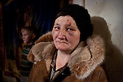 "A resettled woman from the exclusion zone around Chernobyl, in her home north west of Minsk where she bears the scars of ""walking into a tree branch"". Chernobyl's human costs are widespread affecting about seven million people.A generation later children are being born with birth defects ,heart problems and thyroid cancer.The crippled economy of Belarus has led to poverty, social problems and domestic abuse.<br /> Photograph by Eamon Ward"