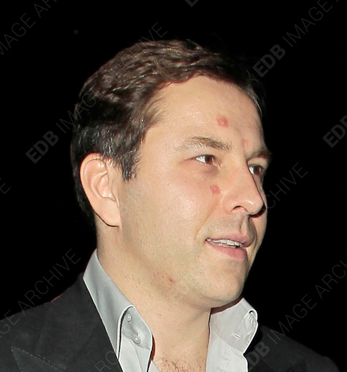 28.SEPTEMBER.2010. LONDON<br /> <br /> DAVID WALLIAMS LEAVING NOBU RESTAURANT, BERKLEY SQUARE WITH SOME ODD LOOKING RED MARKS ON HIS FACE, AFTER HAVING DINNER WITH JAMES CORDEN AND HIS GIRLFRIEND JULIA CAREY.<br /> <br /> BYLINE: EDBIMAGEARCHIVE.COM<br /> <br /> *THIS IMAGE IS STRICTLY FOR UK NEWSPAPERS AND MAGAZINES ONLY*<br /> *FOR WORLD WIDE SALES AND WEB USE PLEASE CONTACT EDBIMAGEARCHIVE - 0208 954 5968*