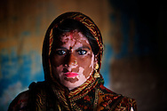 Close-up of a woman suffering from vitiligo skin disorder. Every day hundreds of millions of people in India wake up at dawn and work hard until sunset to find their way out of poverty. Many of these people cannot access clean water and electricity, nor pay school fees for their children or see a doctor when they are sick. Their basic needs have been largely unmet, neither by public services nor by the market that doesn't consider them as potential customers. Access to health care services in India by low-income people is limited due to the poor supply from the public service, especially in remote areas such as slums.