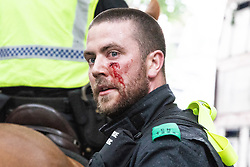 © Licensed to London News Pictures. 09/06/2018. London, UK. An injured police medic as supporters of EDL founder Tommy Robinson ( real name Stephen Yaxley-Lennon ) clash with police in Westminster during a demonstration on Whitehall in Westminster after Robinson was convicted of Contempt of Court . Robinson was already serving a suspended sentence for Contempt of Court over a similar incident , when he was convicted on Friday 25th May 2018 . Photo credit: Joel Goodman/LNP