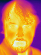 A Thermogram of a man without glasses.  This image is part of a series.  The different colors represent different temperatures on the object. The lightest colors are the hottest temperatures, while the darker colors represent a cooler temperature.  Thermography uses special cameras that can detect light in the far-infrared range of the electromagnetic spectrum (900?14,000 nanometers or 0.9?14 µm) and creates an  image of the objects temperature..