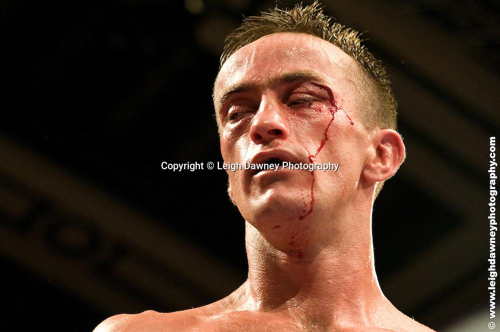 Ryan Walsh defeats Michael O'Gara (pictured) at York Hall, Bethnal Green 9th ocotber 2009. Frank Warren Promotions.Credit: ©Leigh Dawney Photography