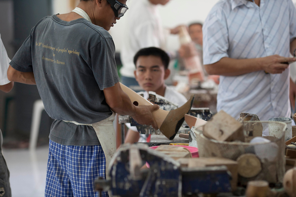That Nge Lay, who lost both legs to a landline looks on as new prosthetic limbs are handcrafted at the Mae Tao clinic in Mae Sot, Thailand, Tuesday, Feb. 21, 2012.