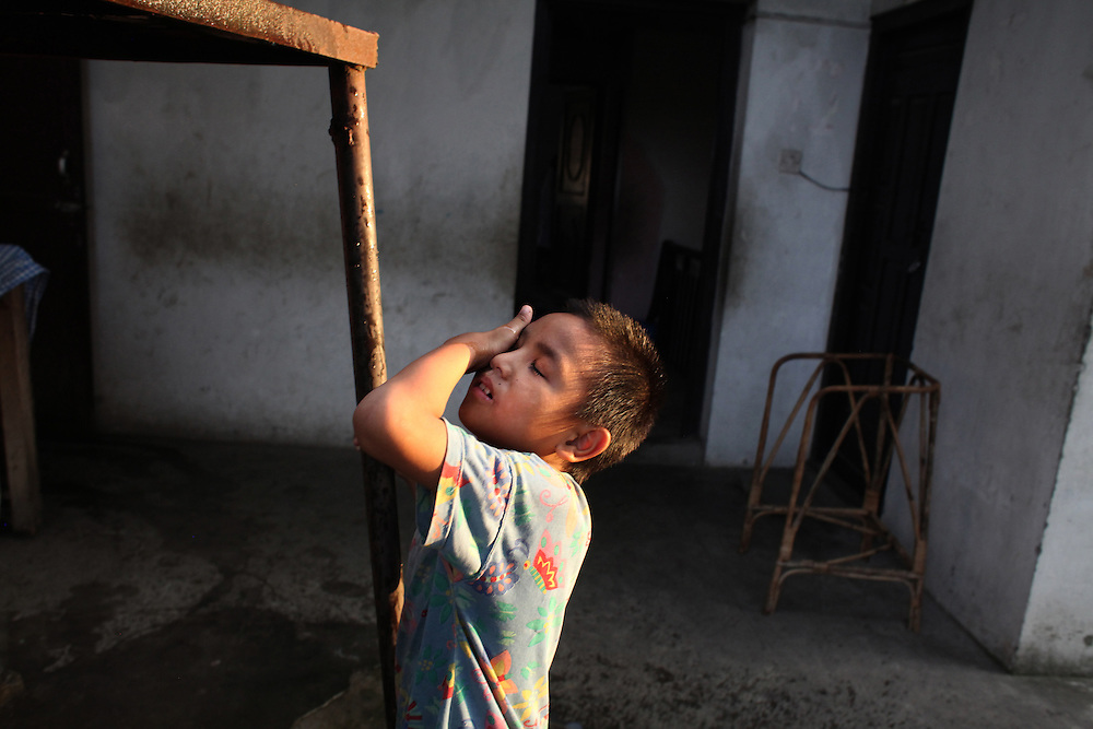 Burn - Pushing On - Dhiraj Suda, 8, cools off with a drop of pooled rain water after playing on the balcony of the Disabled Newlife Centre in Kathmandu, Nepal. Both of Suda's feet were amputated due to severe burns form a cooking fire, but he continues run around (with special shoes) like an average, active Nepalese boy.