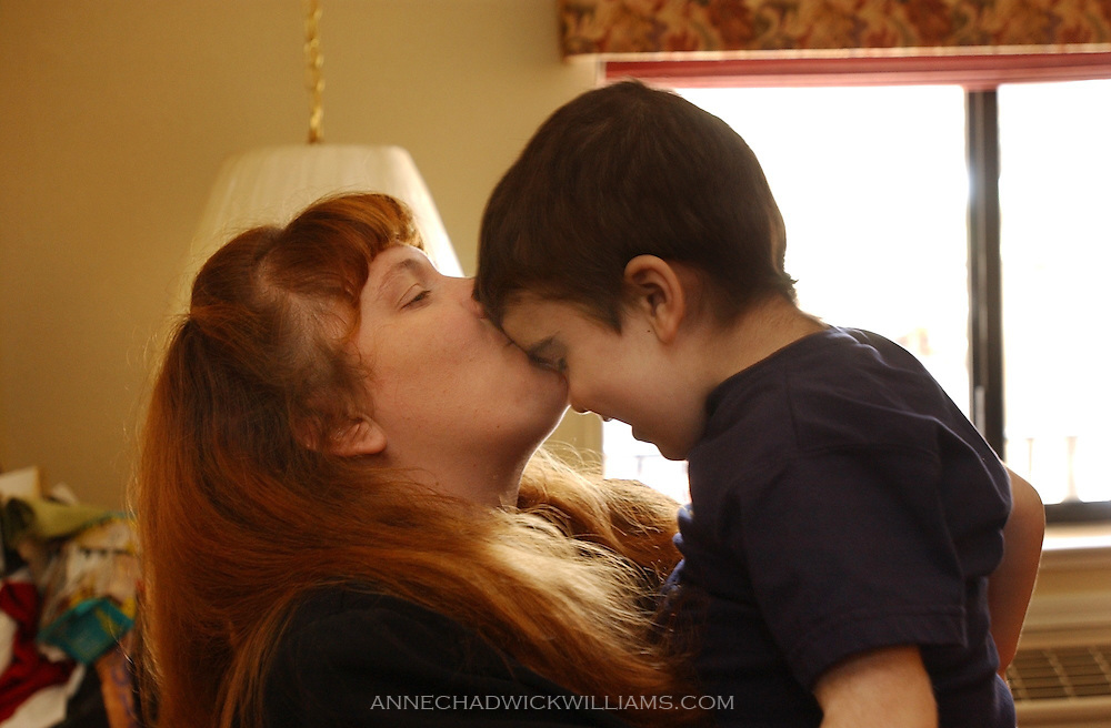 Alicia Bennett gives her son, Tommy, 3, a kiss during a three-week trip back home to Ione before having to return to North Carolina for a third transplant attempt for Tommy to help combat his Sanfilippo syndrome. June 19, 2003.