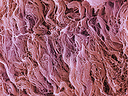 Scanning electron microscope (SEM) image of human muscle tissue collected from an 18 year old male during tooth surgery. The  connective tissue I  collagen fibers and red blood cells . Magnification x3000 when printed 10 cm wide.