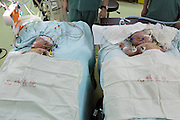 SHANGHAI, CHINA - JUNE 09: (CHINA OUT)<br /> <br /> Siamese Twins Succeed In Separation With Help Of 3D Printed Model<br /> <br /> Siamese girl twins receive separation surgery successfully at Children\'s Hospital of Fudan University on June 9, 2015 in Shanghai, China. Children\'s Hospital of Fudan University accepted their 8th operations of separation surgery on a pair of siamese girl twins. The seperation surgery focused on the haunches in lower bodies of siamese twins and gained success with the help of 3D printed model which recovered body fabric of the twins in same proportion for medical workers\' accurate reference. It was said that it\'s first time that Children\'s Hospital of Fudan University applied 3D skills on separation surgery and the siamese girl twins were in good condition in their 80 days after birth. <br /> ©Exclusivepix Media