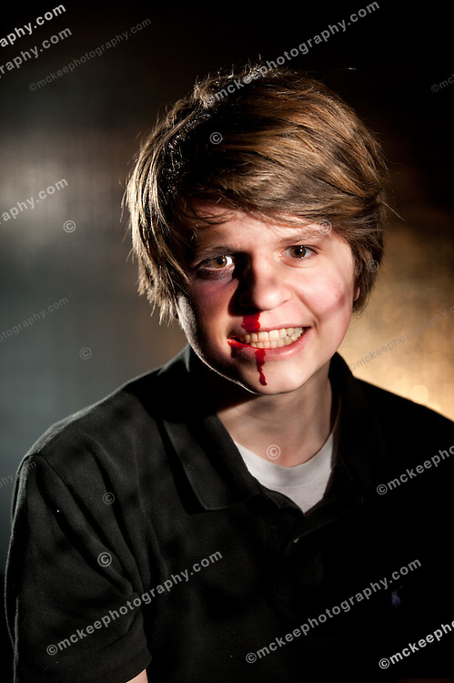 Boy with bloody nose and lip as if in a fight, with haunted eyes