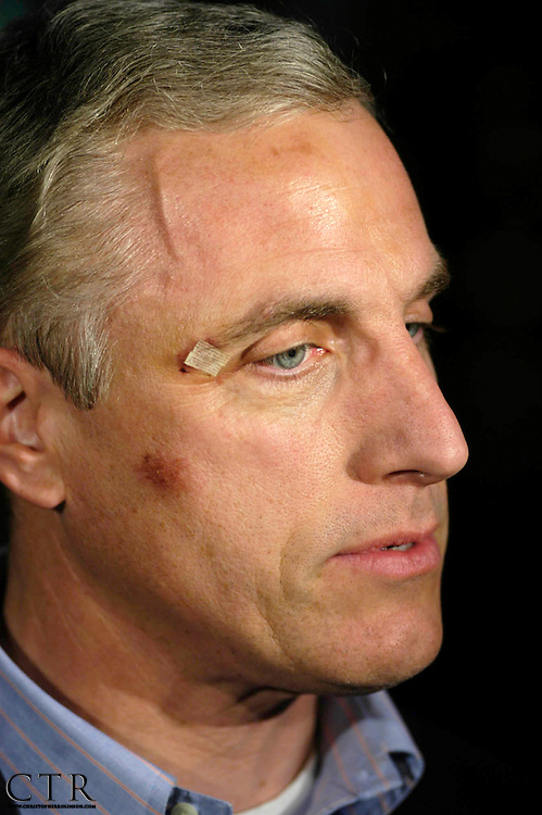 Rep. Tim Murphy, R-Pa. shows injuries he suffered after an convoy accident near Baghdad Sunday. Murphy returned home to Pittsburgh Monday, Nov. 28, 2005. (AP Photo/Christopher Rolinson)