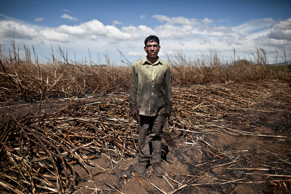 A sugar cane cutter poses for a picture during a break of the San Antonio sugar plantation where 'Flor de Cana' rum is produced, Chichigalpa, Nicaragua. A mysterious epidemic is devastating the Pacific coast of Central America, killing more than 24,000 people in El Salvador and Nicaragua since 2000 and striking thousands of others with chronic kidney disease at rates unseen virtually anywhere else. Many of the victims were manual laborers or worked in the sugarcane fields that cover much of the coastal lowlands.