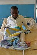 A boy healing from  a leg fracture in the surgery ward of Kibuye Hospital, Karongi District, Western Rwanda