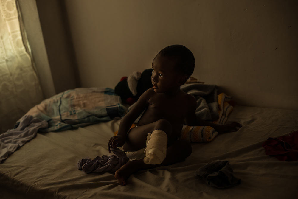 "IXTEPEC, MEXICO - JULY 7, 2014:  Two year old Richard Bermudez waits for a bath on the bed he shares with his mom, Emily.  Emily and Richard fell off of the train ""The Beast"" in May. The train ran over her arm, and Richard's leg -- leaving him partially amputated.  Emily's arm had to be re-attached, and she is going through physical therapy in effort to regain use of it again.  The Bermudez's fled because they were facing life-threatening violence in Honduras, and Emily felt like she and Richard could not survive there if they stayed.  They were trying to migrate without documents to the United States, where they have family. With both of them being injured, they have had to be creative to find ways to do their day to day tasks, like bathing. PHOTO: Meridith Kohut for The New York Times"