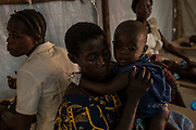 KYANGWALI REFUGEE CAMP, UGANDA - MARCH 23: Rene Ngabusi holds her 14 month old son Solomon Longiringaat suffering from severe symptoms of cholera at a treatment center in Kyangwali refugee resettlement camp in Uganda on March 23, 2018. Cholera is endemic in Eastern Congo and many of the refugees bring the disease to the camp. Violence in Ituri Province in northeastern Democratic Republic of Congo has displaced more than 100,000 people including approximately 40,000 refugees who have fled to Uganda. (Photo by Andrew Renneisen for The Washington Post)
