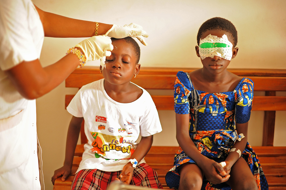 LOME, TOGO 13-04-16   - The eye patch is removed from Marthe Passao's eye the morning after being operated on at Centre de Sante Opthalmologie Jean Paul II in Lome, Togo on April 16, 2013. She received an injury after being struck in the eye by a sharp object six months earlier.  Photo by Daniel Hayduk