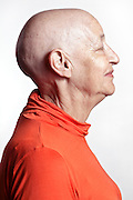 woman after chemotherapy treatment